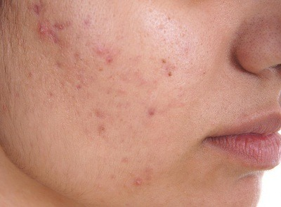 Acne Treatment in Medical Astrology