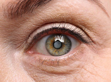 Cataract Treatment In Medical Astrology