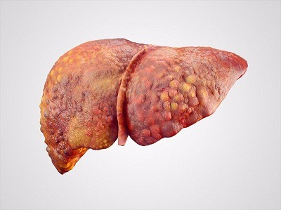 Cirrhosis of Liver Treatment in Medical Astrology